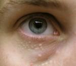 Под глазами белые пупырышки, что делать?