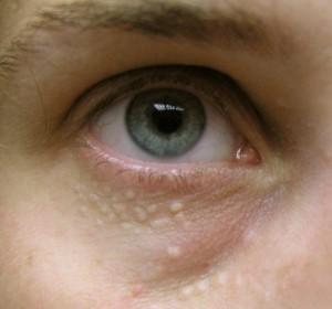 Белые попурышки под глазами, фото