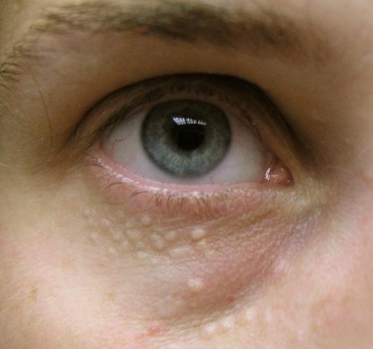 как убрать на фото белые глаза