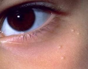 Милиумы под глазами, фото